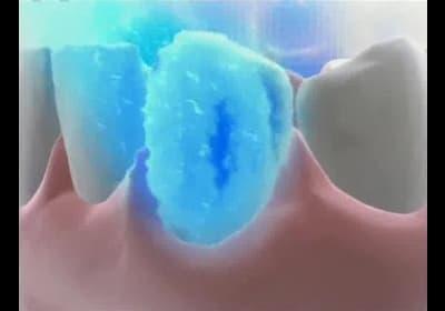 Лечение кариеса озоном