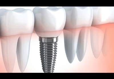 Имплантация зубов в Москве | Эстетик Дент