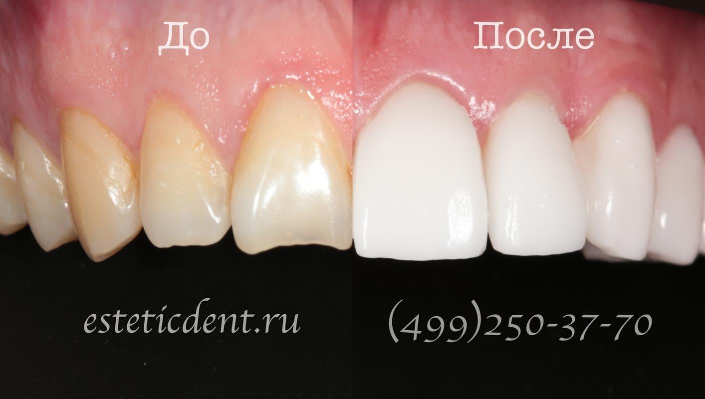 Сколько стоит поставить винир на 1 зуб