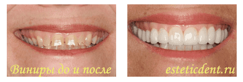 стоматология на новослободской институт цены